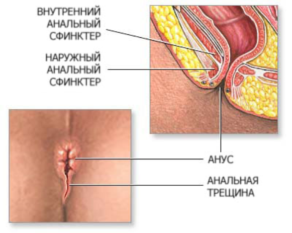 Заболевания прямой кишки  asterymedru